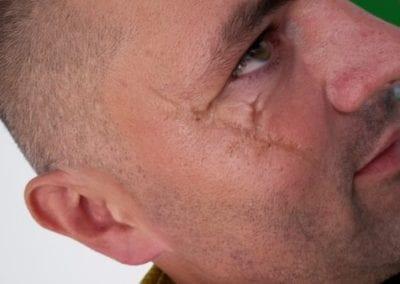 SFX Makeup, Narben / Heidi Debbah Maskenbildnerin und SFX Artist