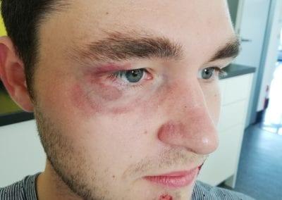 Hämatom am Auge und Schürfwunde am Kinn / Heidi Debbah Maskenbildnerin und Visagistin